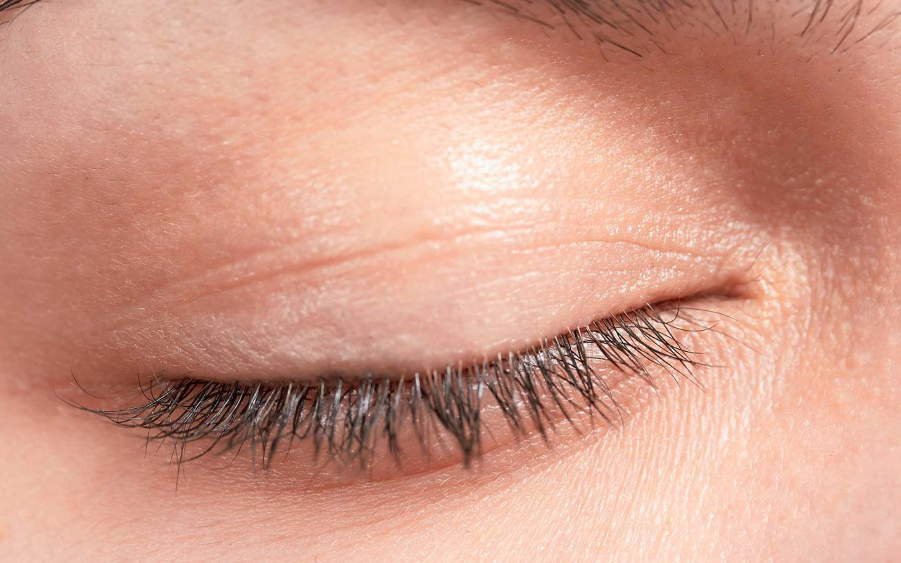 Eyelid Surgery | Brazilian Esthetic Clinics